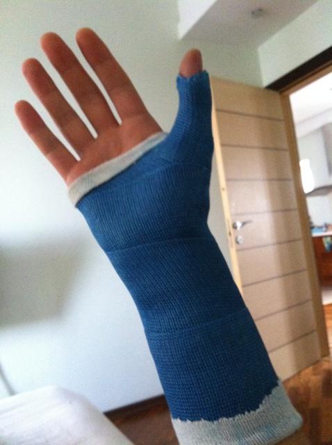 """Снежок"" сломал руку"