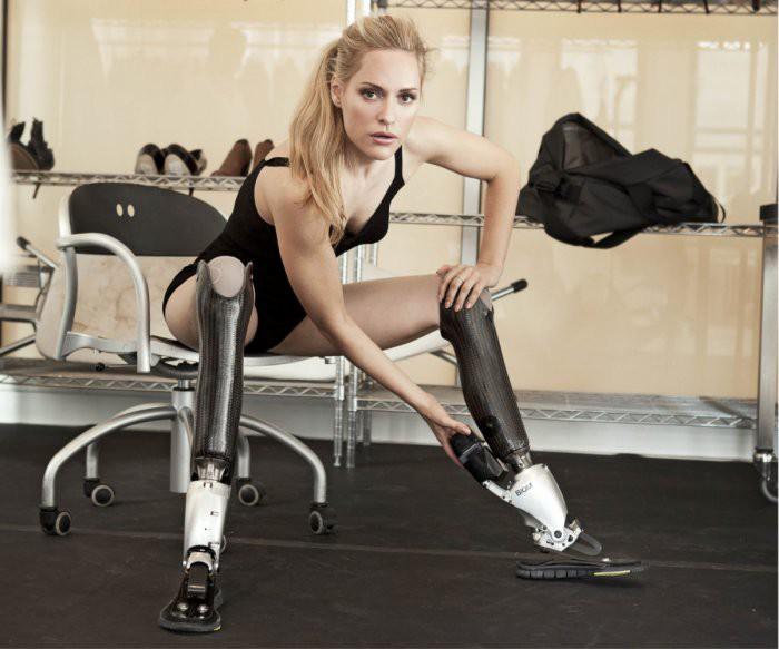 Врачи были уверены, что Эйми Маллинс никогда не сможет ходить Фото: Getty/Fotobank