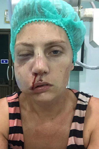Модель Екатерину Авинову избил муж на глазах сына