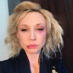 Синяки, побои - как провела Кристина Орбакайте первый день апреля