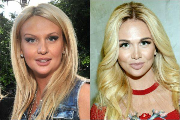 Бьюти-эволюция Лопыревой - сравните фотографии до и после