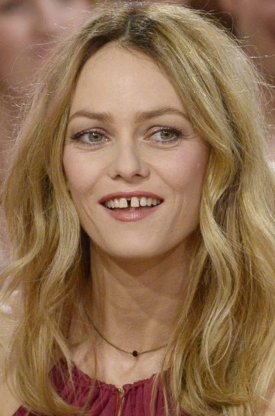 Неголливудская улыбка: знаменитости, сохранившие свои естественные зубы