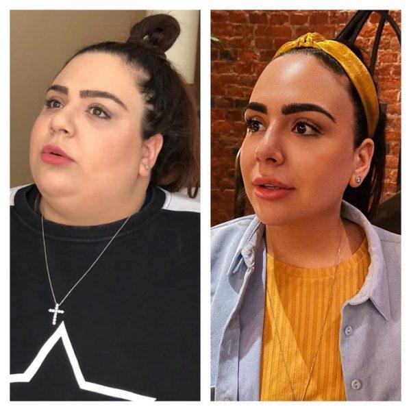 Блогер София Броян рассказала, как за год похудела на 100 килограмм