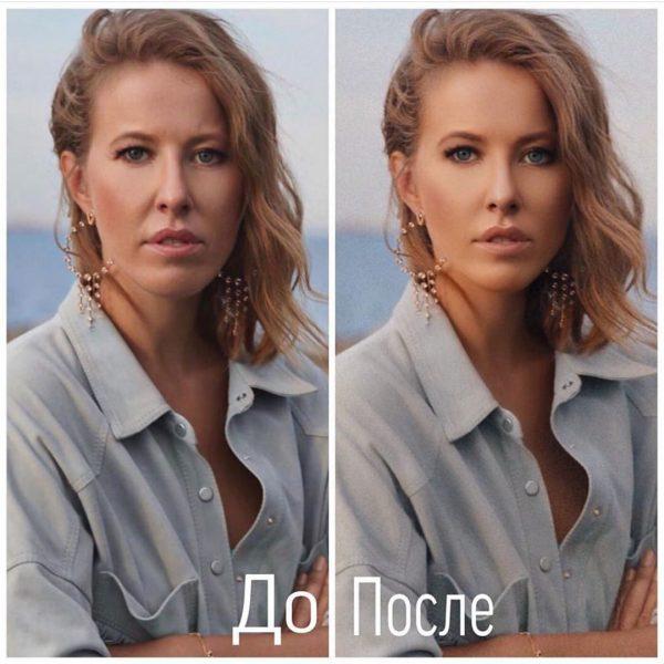 Российские звезды без стыда: артисты выкладывают свои фотографии без фотошопа