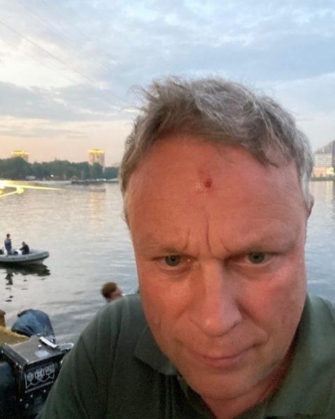 Сергея Жигунова ранили в голову
