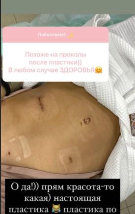 Айза Долматова перенесла операцию по удалению опухоли