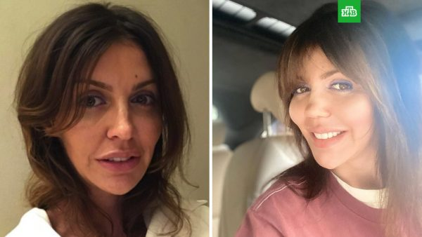 Алиса Казьмина до и после ринопластики