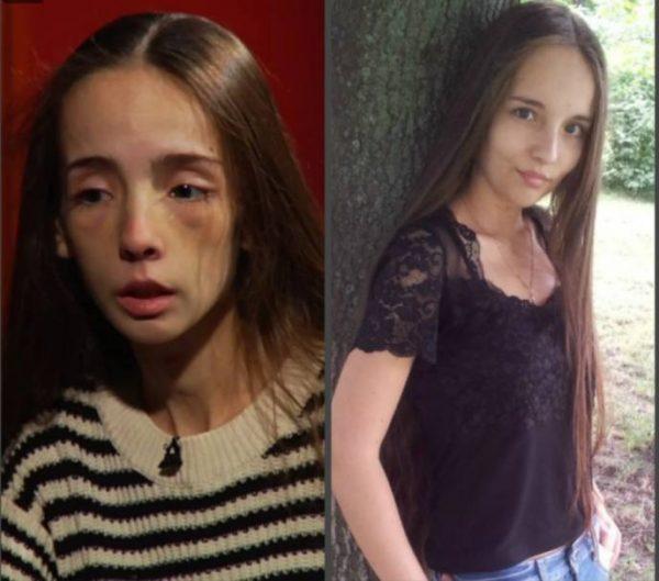 Катя Яковлева до и после