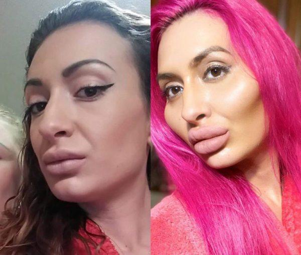 Анастасия Покрыщук до и после изменений. Фото Инстаграм