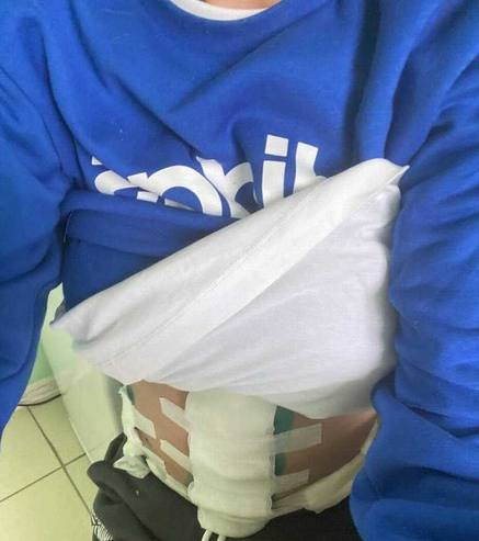 Аршавина после операции