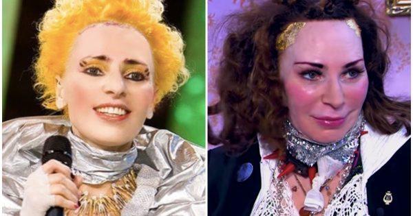 Жанна Агузарова до и после пластики