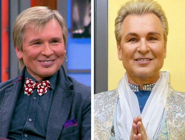 Знаменитые мужчины отечественного шоу-бизнеса, которые перестарались с пластикой. Фото до и после
