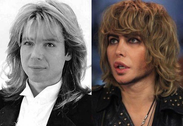 Сергей Зверев до и после смены внешности