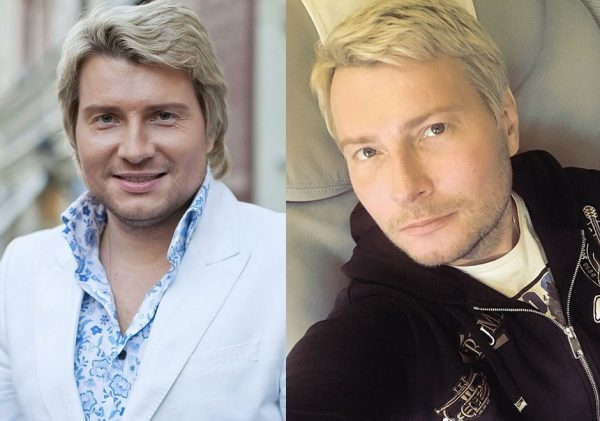 Николай Басков до и после пластики