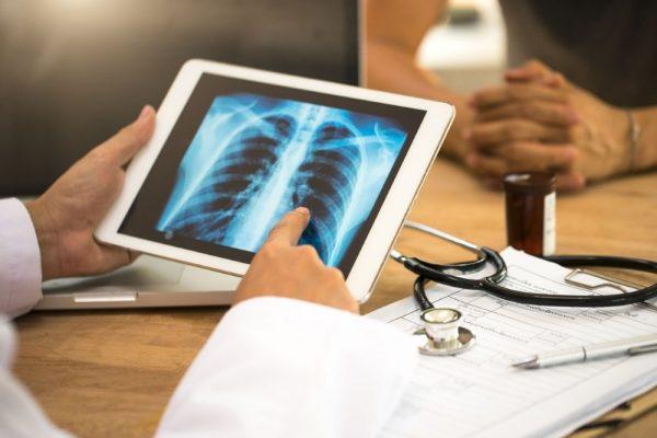 Рак лёгких. Фото rg.ru