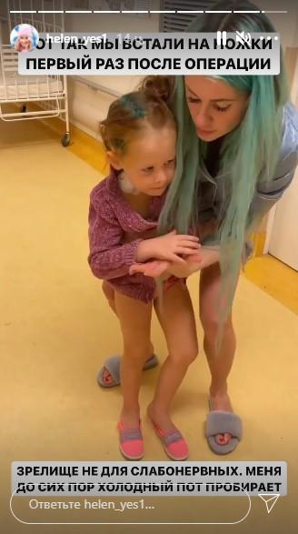 Маленькой дочке Елены Сажиной экстренно сделали трепанацию черепа