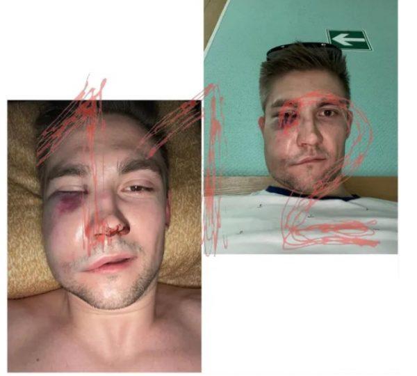 Сломаны скулы, выбит глаз: известного актёра и режиссёра задержали после нанесения тяжёлых увечий хоккеисту