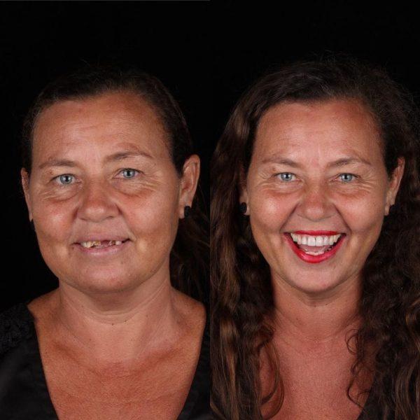 Женщина без зубов