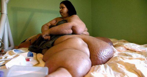 История девушки, которая похудела на 408 килограмм за 10 лет. Что с ней стало, чем занимается и как сейчас