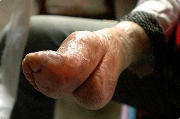 Нога-лотос у современной китаянки