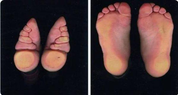 """Сравнение нормальной ступни и """"лотоса"""""""