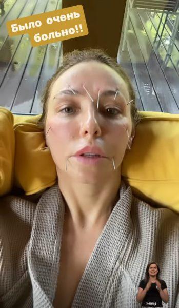 Татьяна Навка на иглоукалывании
