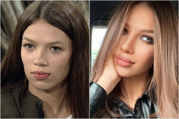 Инесса Шевчук до и после,