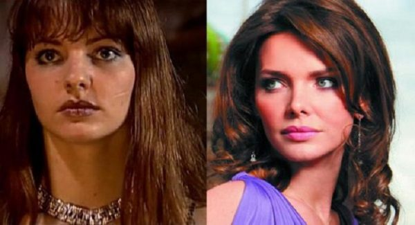 Лиза Боярская до и после пластики