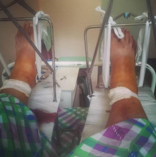 Так выглядят ноги Казакова сейчас. Фото Инстаграм
