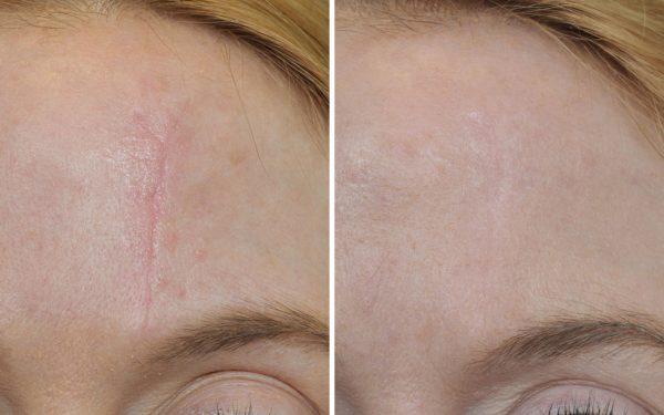 Инновационное косметическое средство - крем против шрамов и рубцов Нарбирил